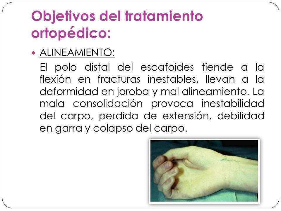 Objetivos del tratamiento ortopédico: ALINEAMIENTO: El polo distal del escafoides tiende a la flexión en fracturas inestables, llevan a la deformidad en joroba y mal alineamiento.