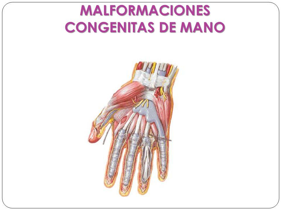Sinostosis: Son casón en los cuales hay falta de diferencia a nivel óseo las mas comunes se presentan en falanges, y huesos del carpo.