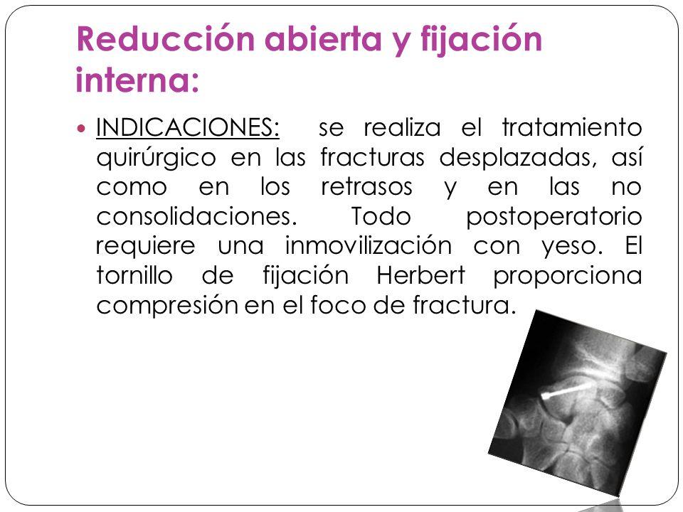 Reducción abierta y fijación interna: INDICACIONES: se realiza el tratamiento quirúrgico en las fracturas desplazadas, así como en los retrasos y en las no consolidaciones.