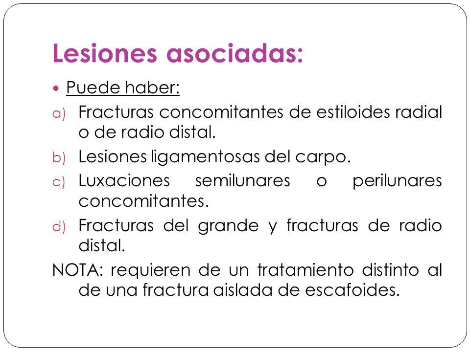 Lesiones asociadas: Puede haber: a) Fracturas concomitantes de estiloides radial o de radio distal.