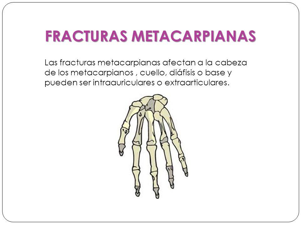 FRACTURAS METACARPIANAS Las fracturas metacarpianas afectan a la cabeza de los metacarpianos, cuello, diáfisis o base y pueden ser intraauriculares o extraarticulares.