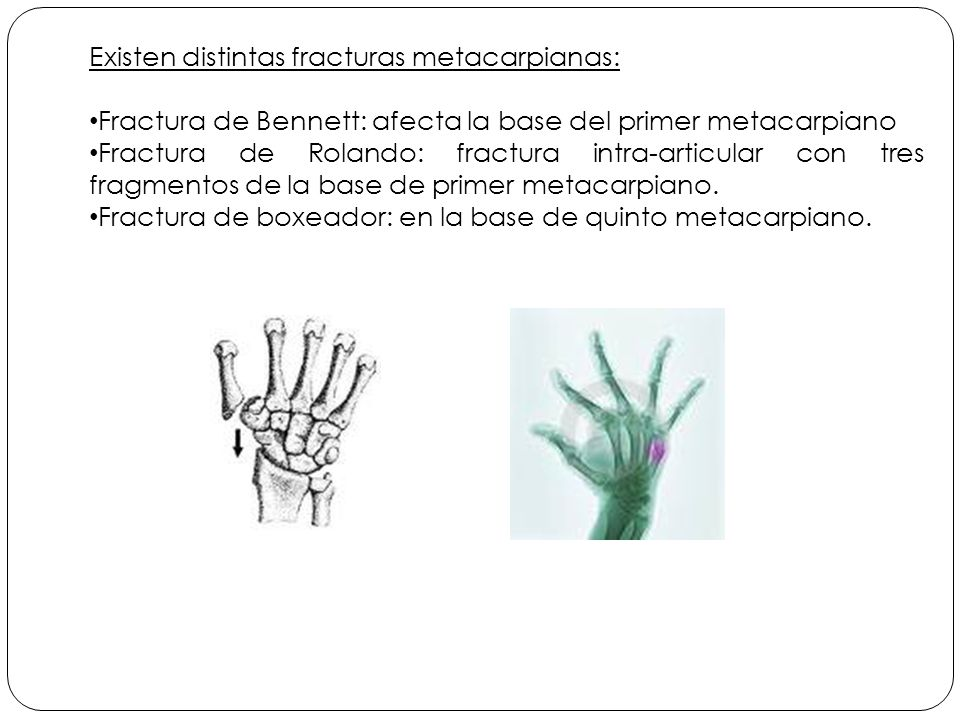 Existen distintas fracturas metacarpianas: Fractura de Bennett: afecta la base del primer metacarpiano Fractura de Rolando: fractura intra-articular con tres fragmentos de la base de primer metacarpiano.