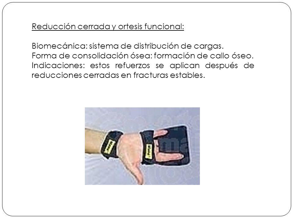 Reducción cerrada y ortesis funcional: Biomecánica: sistema de distribución de cargas.