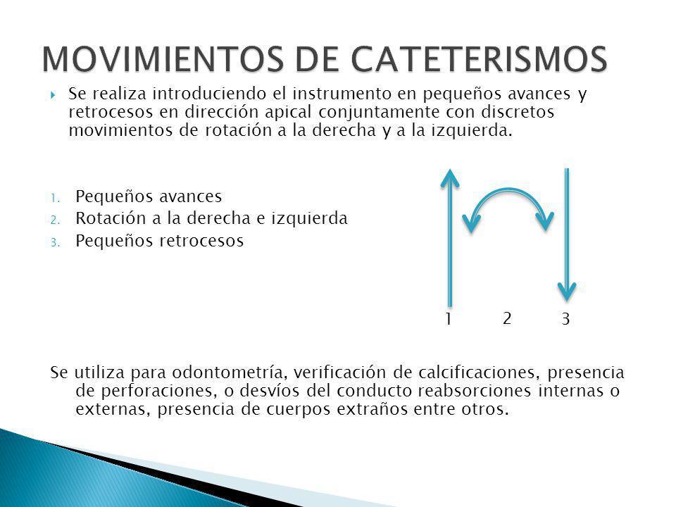 Se realiza introduciendo el instrumento en pequeños avances y retrocesos en dirección apical conjuntamente con discretos movimientos de rotación a la