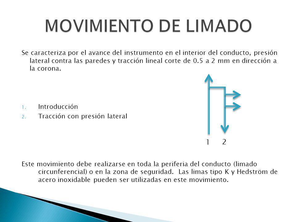 Se caracteriza por el avance del instrumento en el interior del conducto, presión lateral contra las paredes y tracción lineal corte de 0.5 a 2 mm en