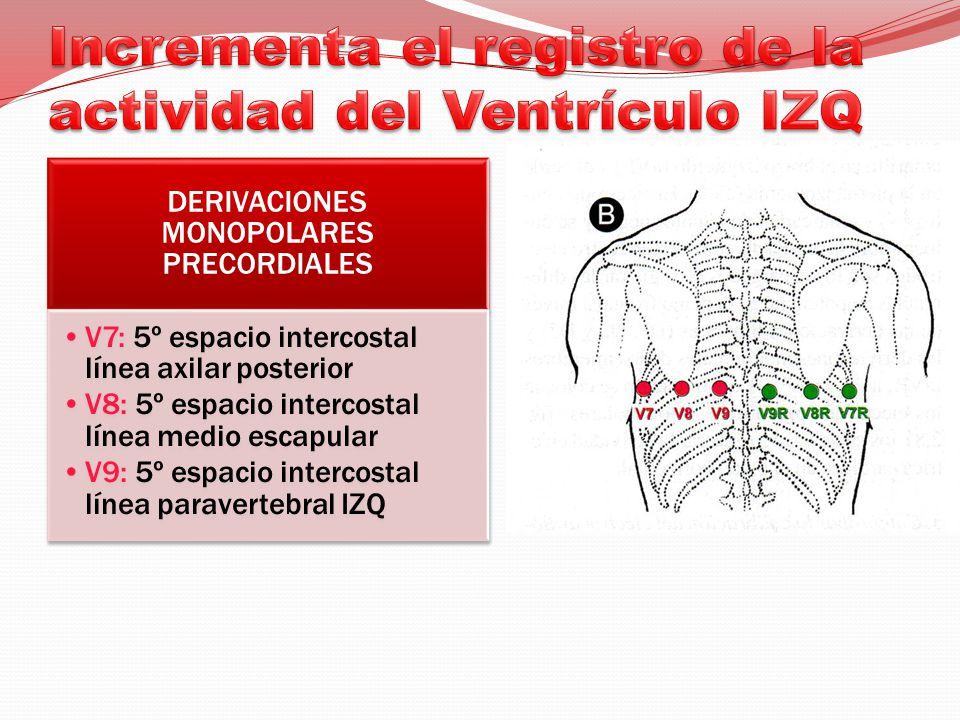 DERIVACIONES MONOPOLARES PRECORDIALES V7: 5º espacio intercostal línea axilar posterior V8: 5º espacio intercostal línea medio escapular V9: 5º espacio intercostal línea paravertebral IZQ