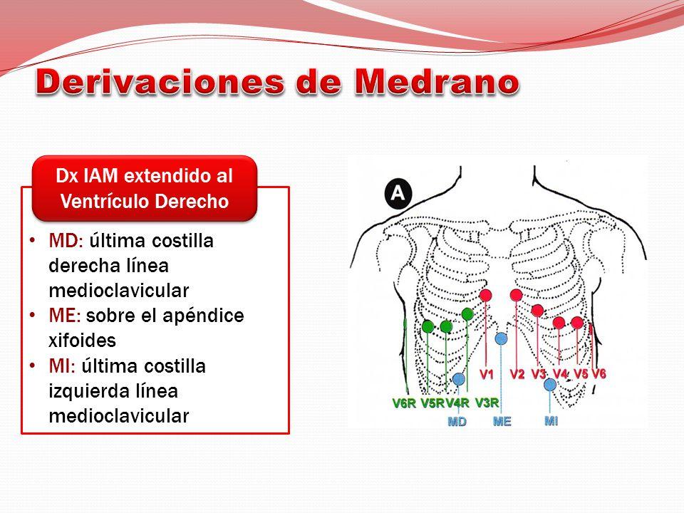 MD: última costilla derecha línea medioclavicular ME: sobre el apéndice xifoides MI: última costilla izquierda línea medioclavicular Dx IAM extendido al Ventrículo Derecho