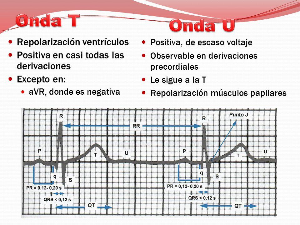 Repolarización ventrículos Positiva en casi todas las derivaciones Excepto en: aVR, donde es negativa Positiva, de escaso voltaje Observable en derivaciones precordiales Le sigue a la T Repolarización músculos papilares