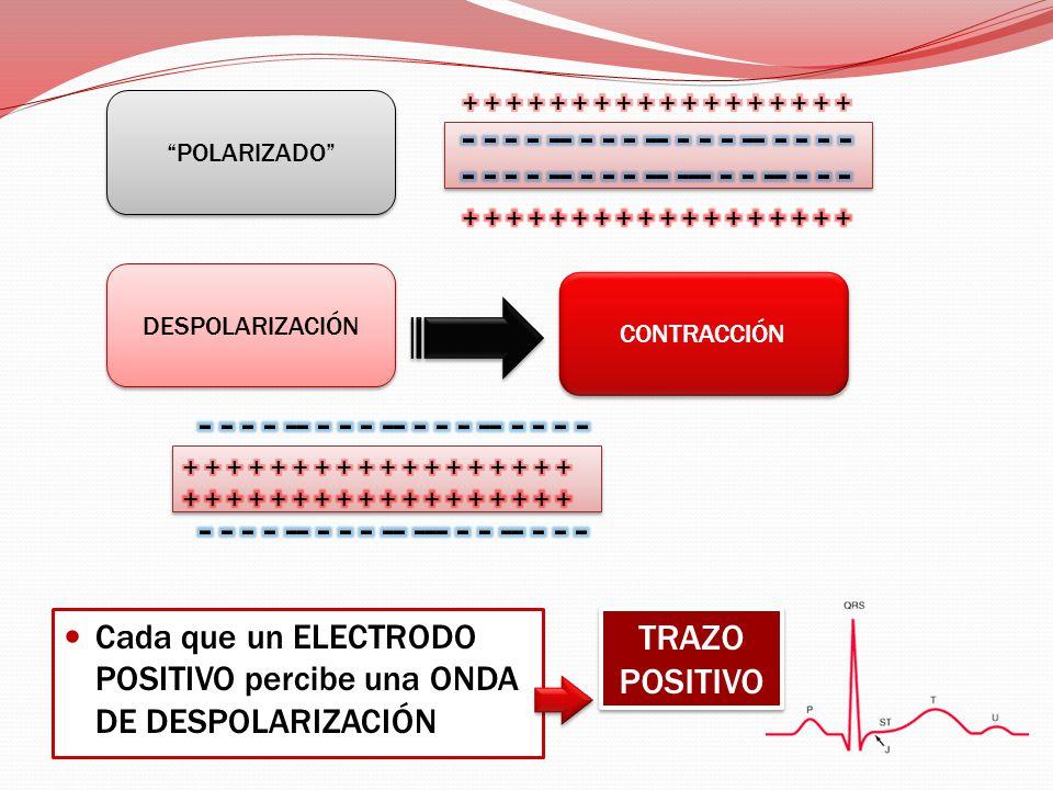Cada que un ELECTRODO POSITIVO percibe una ONDA DE DESPOLARIZACIÓN CONTRACCIÓN DESPOLARIZACIÓN POLARIZADO TRAZO POSITIVO