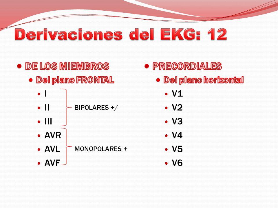 DERIVACIONES MONOPOLARES PRECORDIALES V.