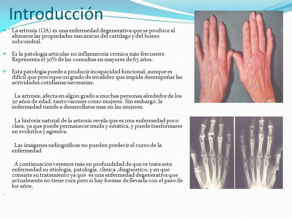 El dolor es causado por: Artritis.Enfermedad del hueso adyacente.