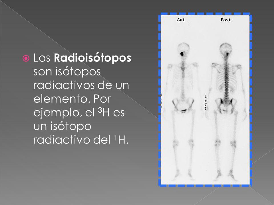 Los Radioisótopos son isótopos radiactivos de un elemento. Por ejemplo, el 3 H es un isótopo radiactivo del 1 H.