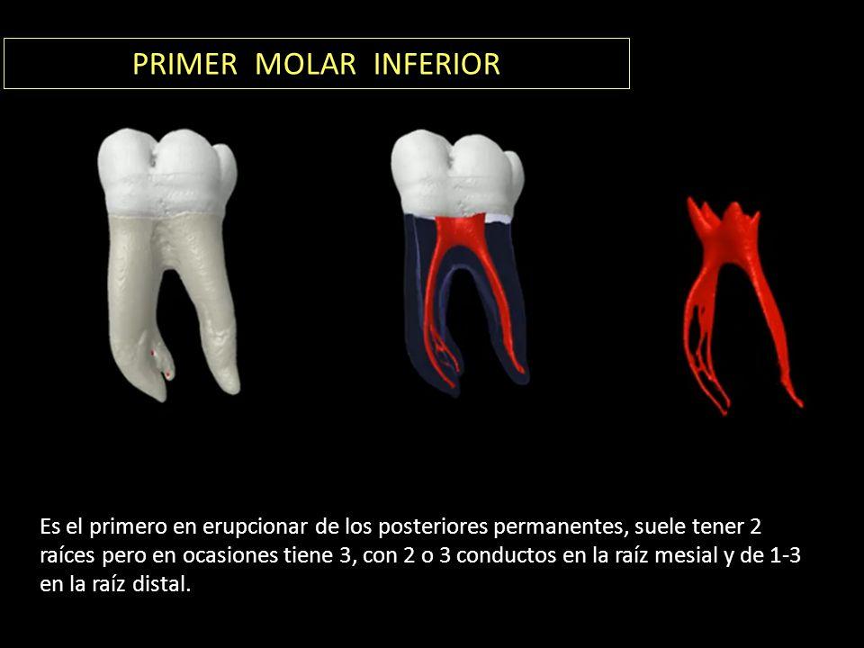 PRIMER MOLAR INFERIOR Es el primero en erupcionar de los posteriores permanentes, suele tener 2 raíces pero en ocasiones tiene 3, con 2 o 3 conductos en la raíz mesial y de 1-3 en la raíz distal.