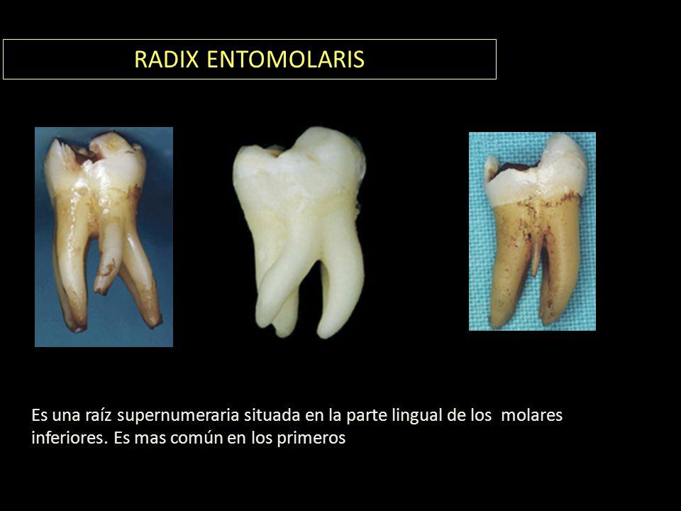 RADIX ENTOMOLARIS Es una raíz supernumeraria situada en la parte lingual de los molares inferiores.
