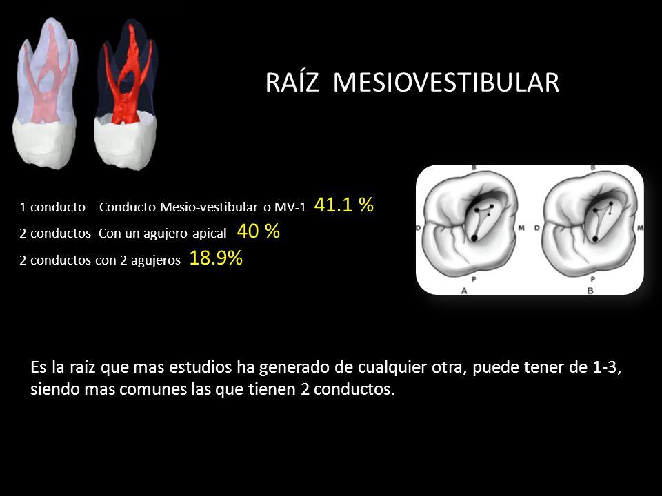 RAÍZ MESIOVESTIBULAR Es la raíz que mas estudios ha generado de cualquier otra, puede tener de 1-3, siendo mas comunes las que tienen 2 conductos.