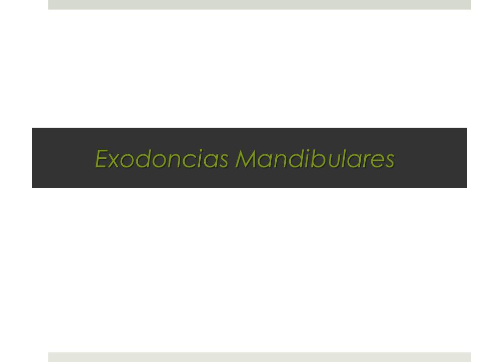 Exodoncias Mandibulares