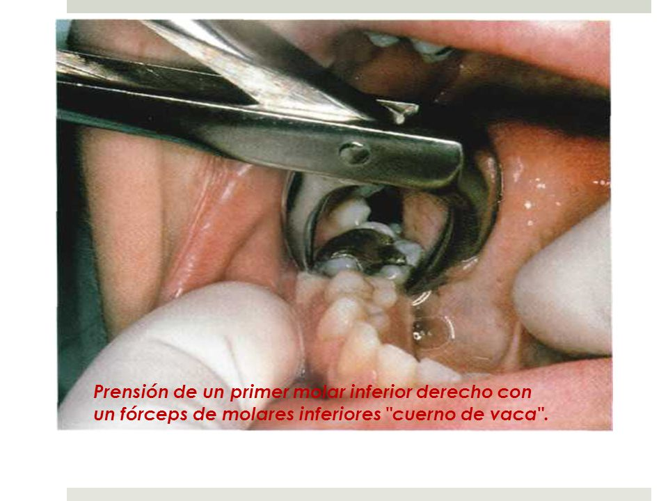 Prensión de un primer molar inferior derecho con un fórceps de molares inferiores cuerno de vaca .