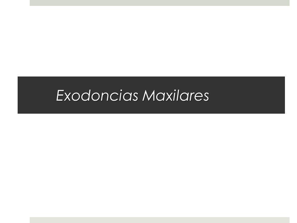Exodoncias Maxilares