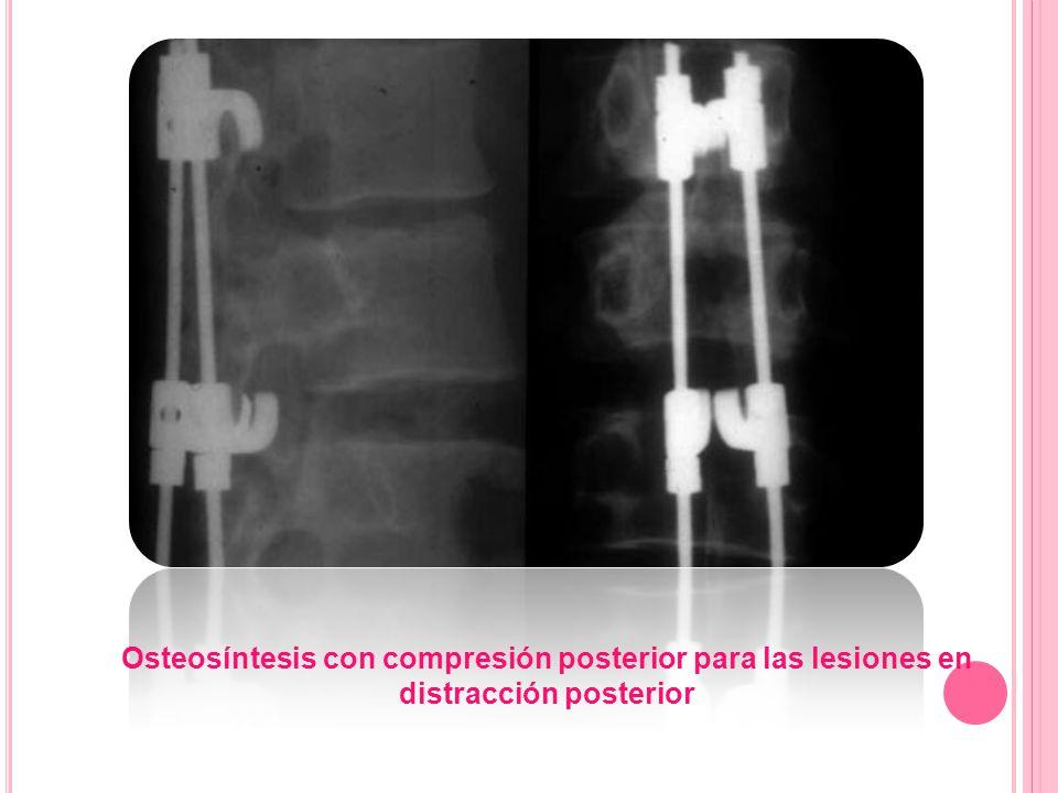 Osteosíntesis con compresión posterior para las lesiones en distracción posterior
