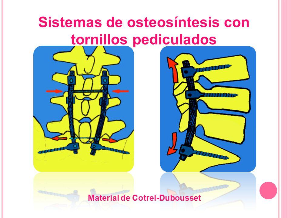 Material de Cotrel-Dubousset Sistemas de osteosíntesis con tornillos pediculados