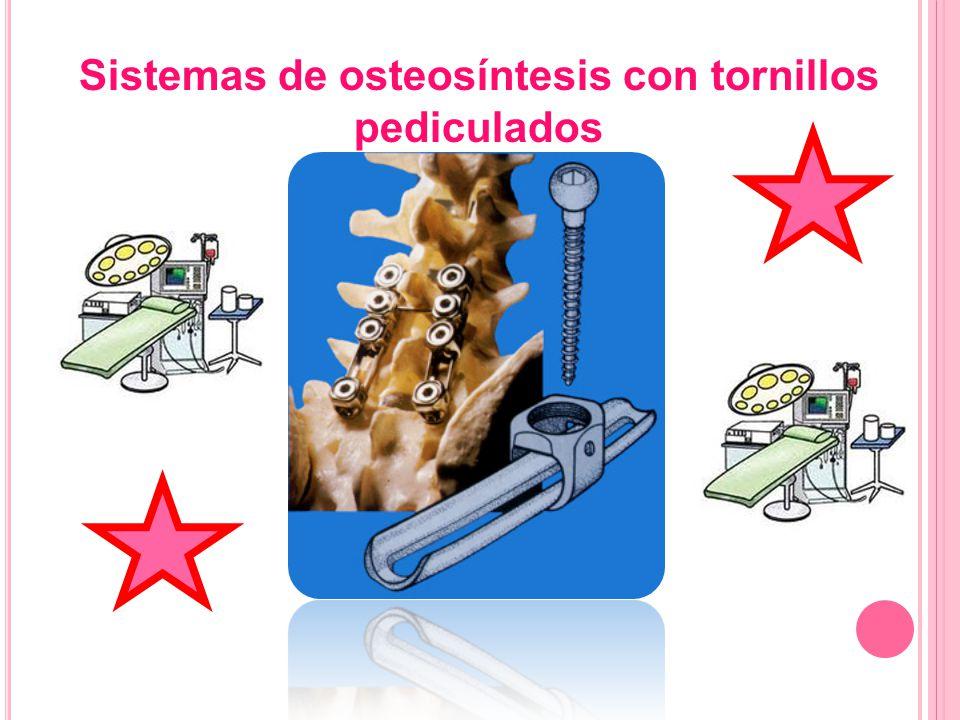 Material del Hospital Tenon Sistemas de osteosíntesis con tornillos pediculados