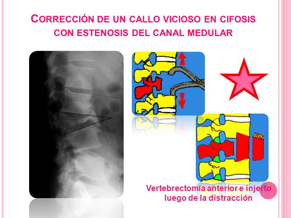 C ORRECCIÓN DE UN CALLO VICIOSO EN CIFOSIS CON ESTENOSIS DEL CANAL MEDULAR Vertebrectomía anterior e injerto luego de la distracción