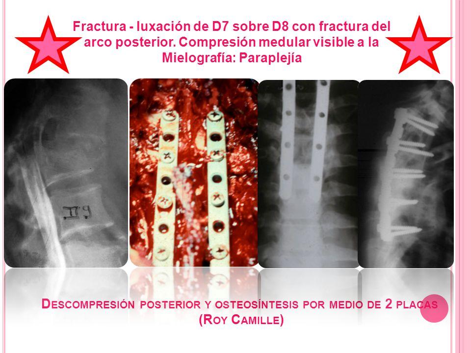 D ESCOMPRESIÓN POSTERIOR Y OSTEOSÍNTESIS POR MEDIO DE 2 PLACAS (R OY C AMILLE ) Fractura - luxación de D7 sobre D8 con fractura del arco posterior. Co