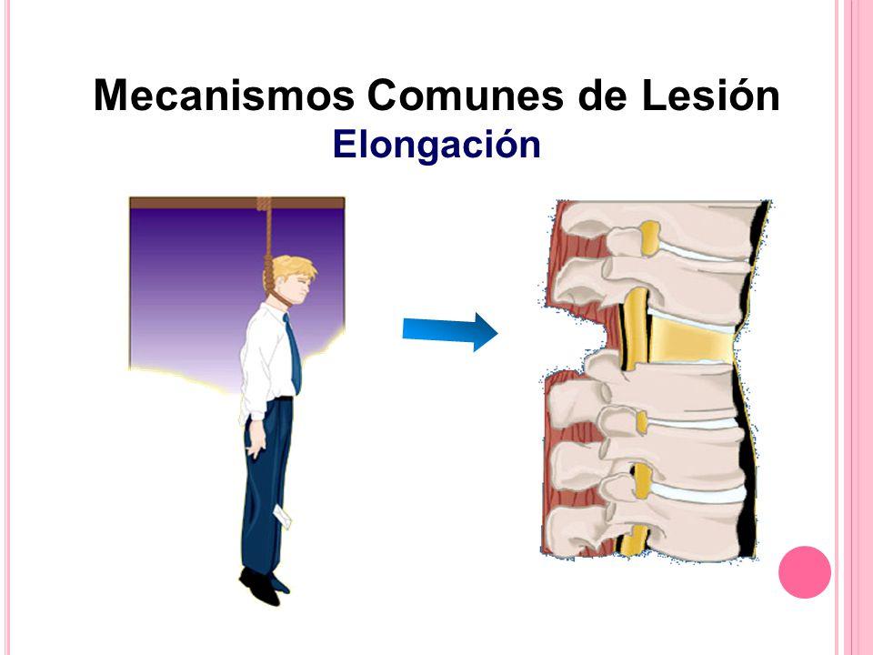 Mecanismos Comunes de Lesión Elongación