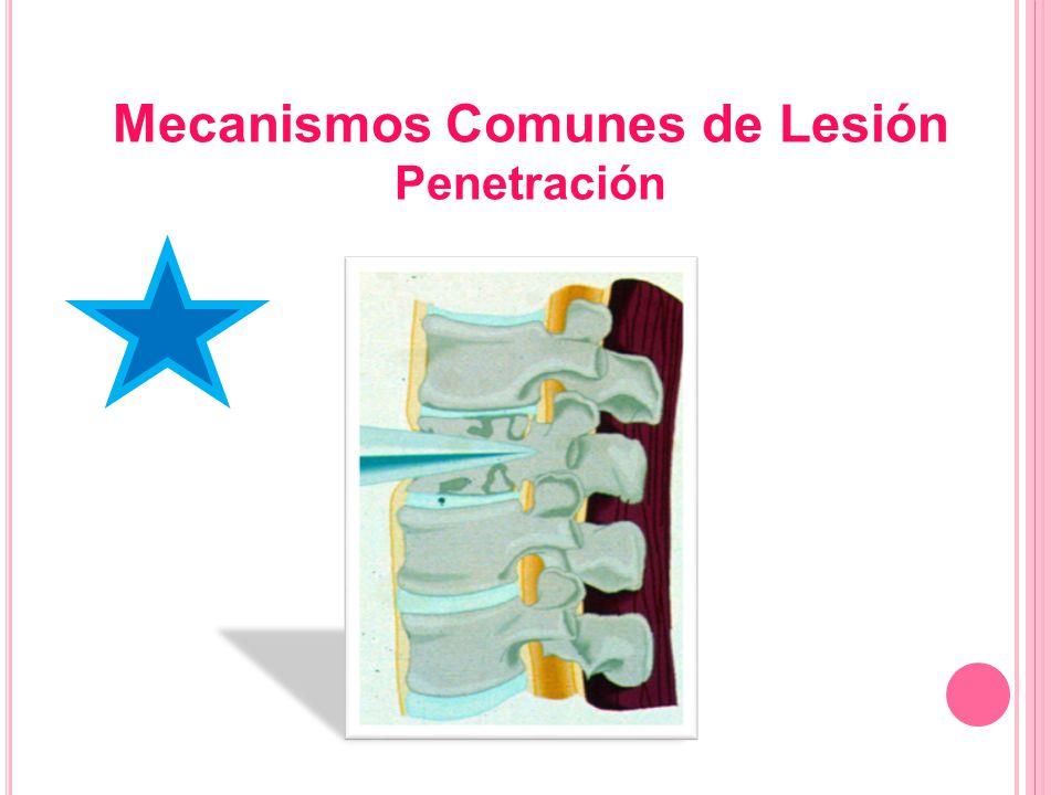 Mecanismos Comunes de Lesión Penetración