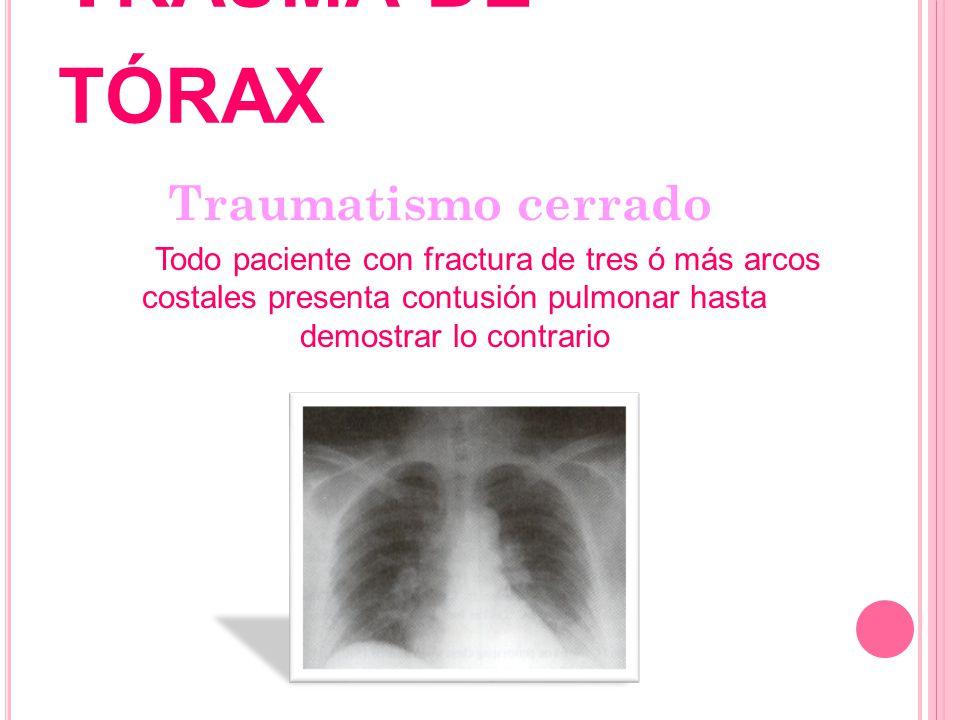 T RAUMA DE TÓRAX Traumatismo cerrado Todo paciente con fractura de tres ó más arcos costales presenta contusión pulmonar hasta demostrar lo contrario