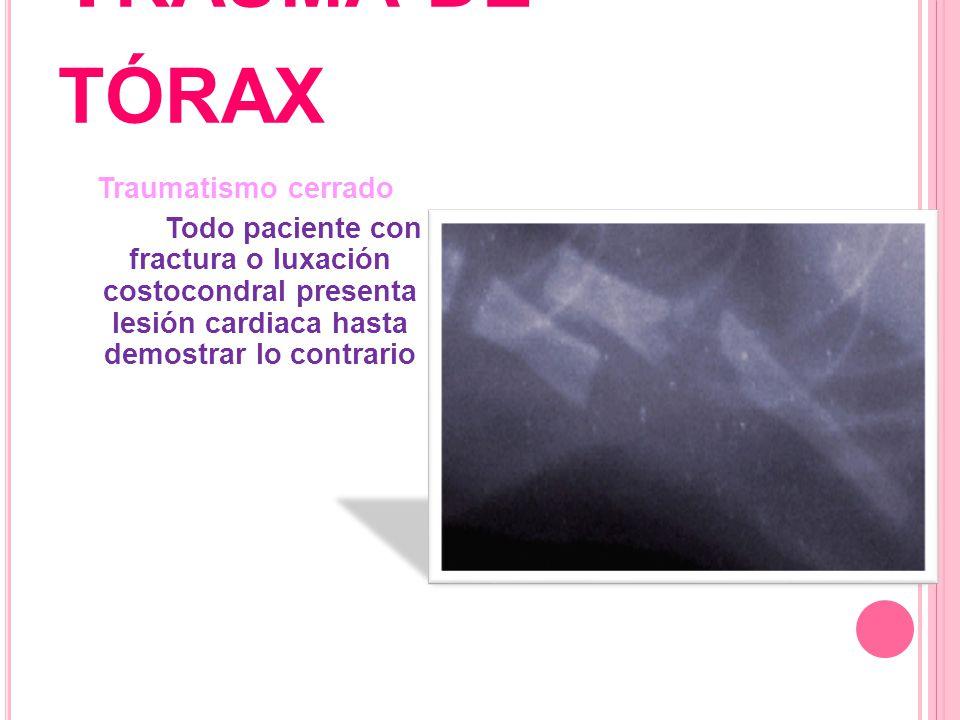 T RAUMA DE TÓRAX Traumatismo cerrado Todo paciente con fractura o luxación costocondral presenta lesión cardiaca hasta demostrar lo contrario