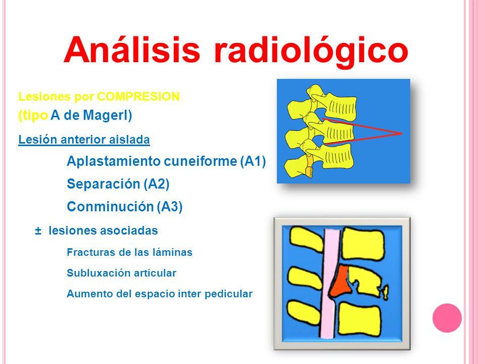 Lesiones por COMPRESION (tipo A de Magerl) Lesión anterior aislada Aplastamiento cuneiforme (A1) Separación (A2) Conminución (A3) ± lesiones asociadas