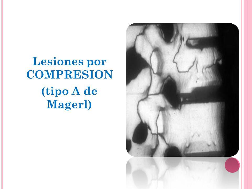 Lesiones por COMPRESION (tipo A de Magerl) Lesión anterior aislada