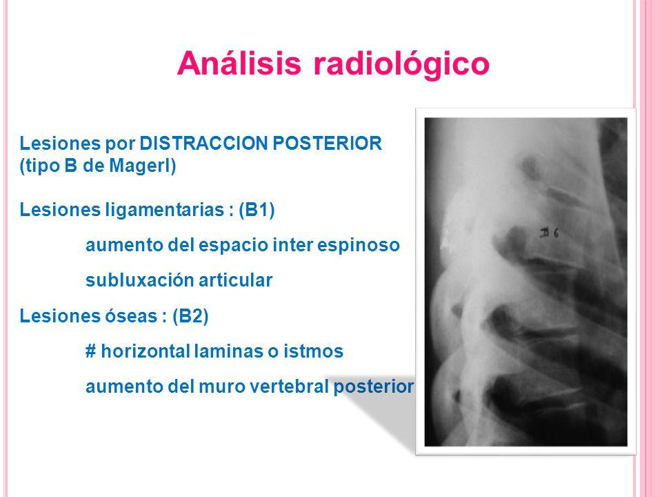 Lesiones por DISTRACCION POSTERIOR (tipo B de Magerl) Lesiones ligamentarias : (B1) aumento del espacio inter espinoso subluxación articular Lesiones