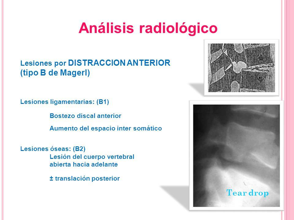 Lesiones por DISTRACCION ANTERIOR (tipo B de Magerl) Lesiones ligamentarias: (B1) Bostezo discal anterior Aumento del espacio inter somático Lesiones