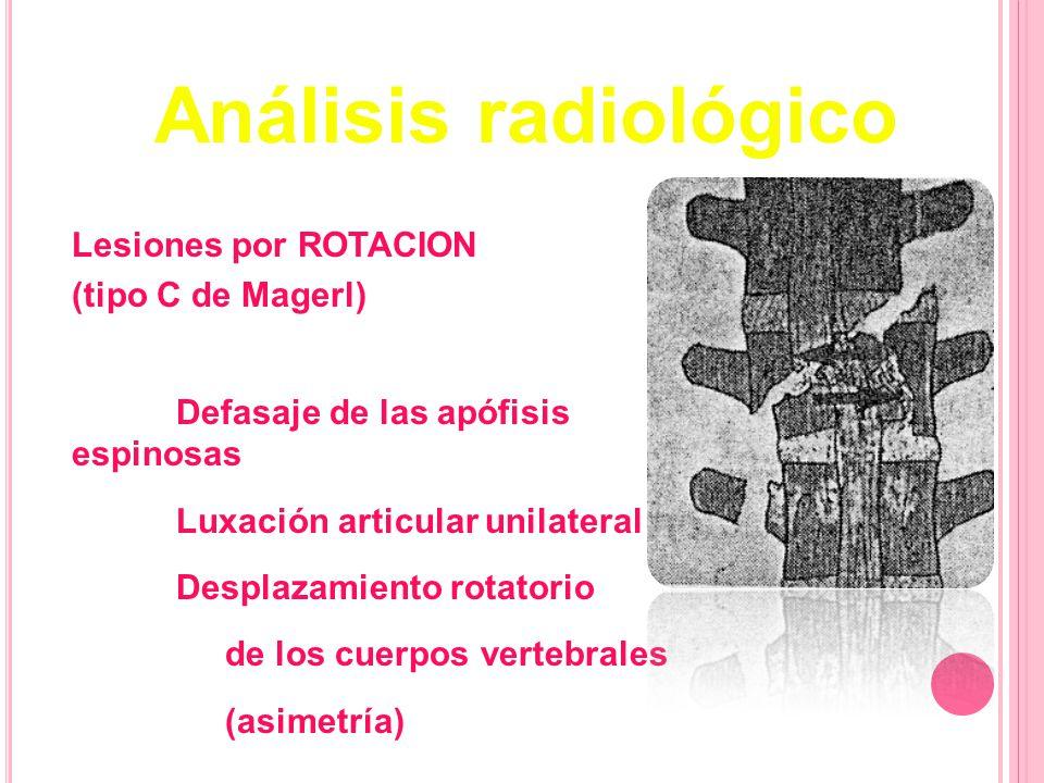 Lesiones por ROTACION (tipo C de Magerl) Defasaje de las apófisis espinosas Luxación articular unilateral Desplazamiento rotatorio de los cuerpos vert