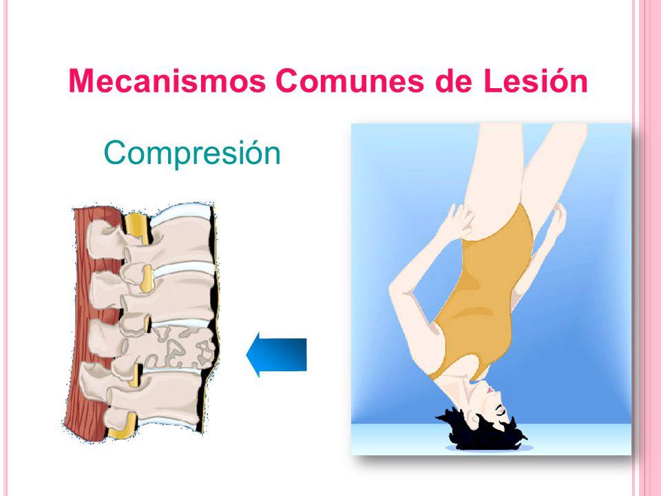 Mecanismos Comunes de Lesión Compresión