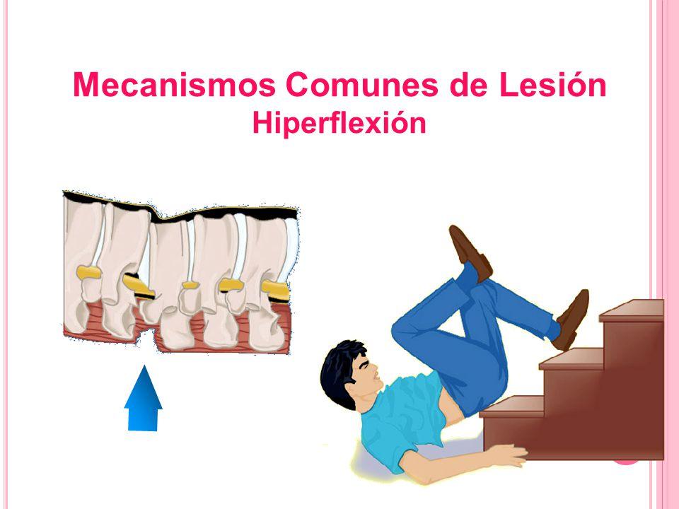 Mecanismos Comunes de Lesión Hiperflexión