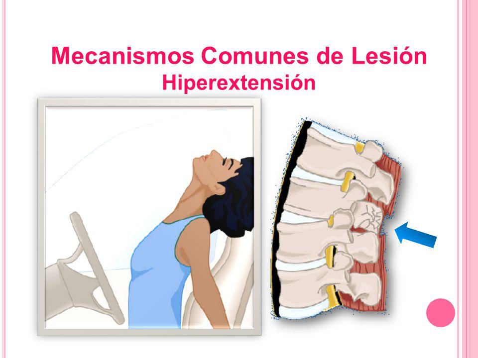 Mecanismos Comunes de Lesión Hiperextensión