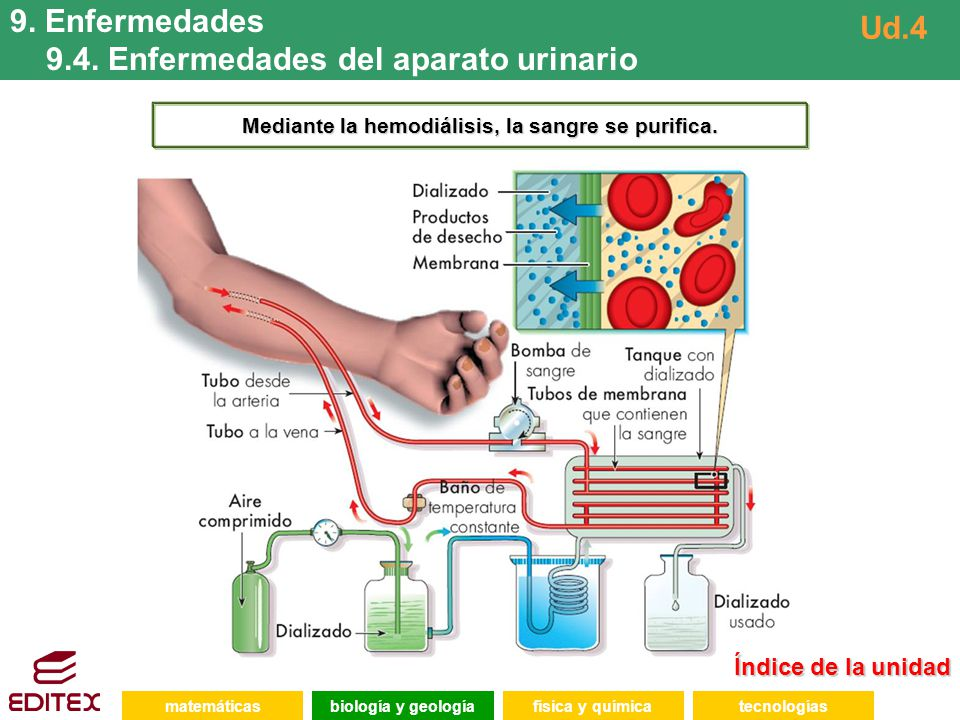 matemáticasfísica y químicatecnologíasbiología y geología 9. Enfermedades 9.4. Enfermedades del aparato urinario Ud.4 Mediante la hemodiálisis, la san
