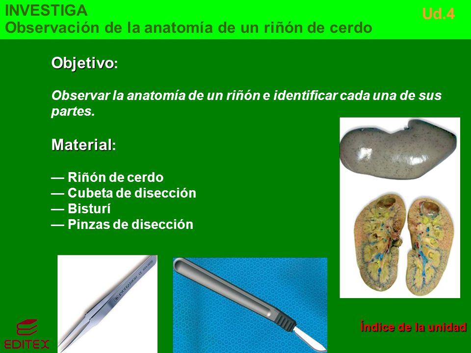 Objetivo Objetivo : Observar la anatomía de un riñón e identificar cada una de sus partes. Material Material : Riñón de cerdo Cubeta de disección Bist