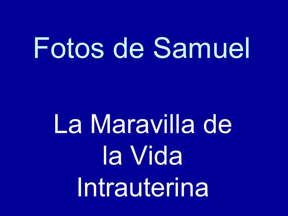 Fotos de Samuel La Maravilla de la Vida Intrauterina