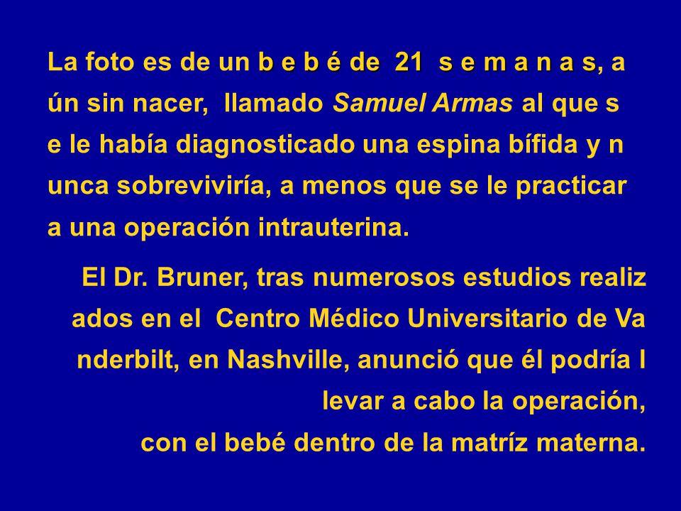 b e b é de 21 s e m a n a s La foto es de un b e b é de 21 s e m a n a s, a ún sin nacer, llamado Samuel Armas al que s e le había diagnosticado una espina bífida y n unca sobreviviría, a menos que se le practicar a una operación intrauterina.