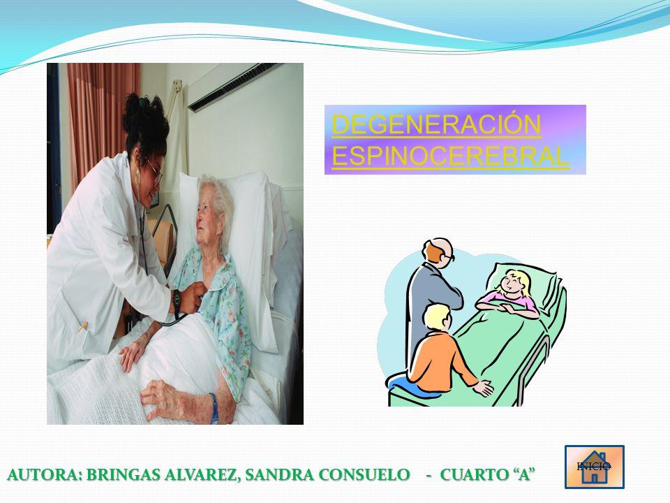 DEGENERACIÓN ESPINOCEREBRAL INICIO AUTORA: BRINGAS ALVAREZ, SANDRA CONSUELO - CUARTO A