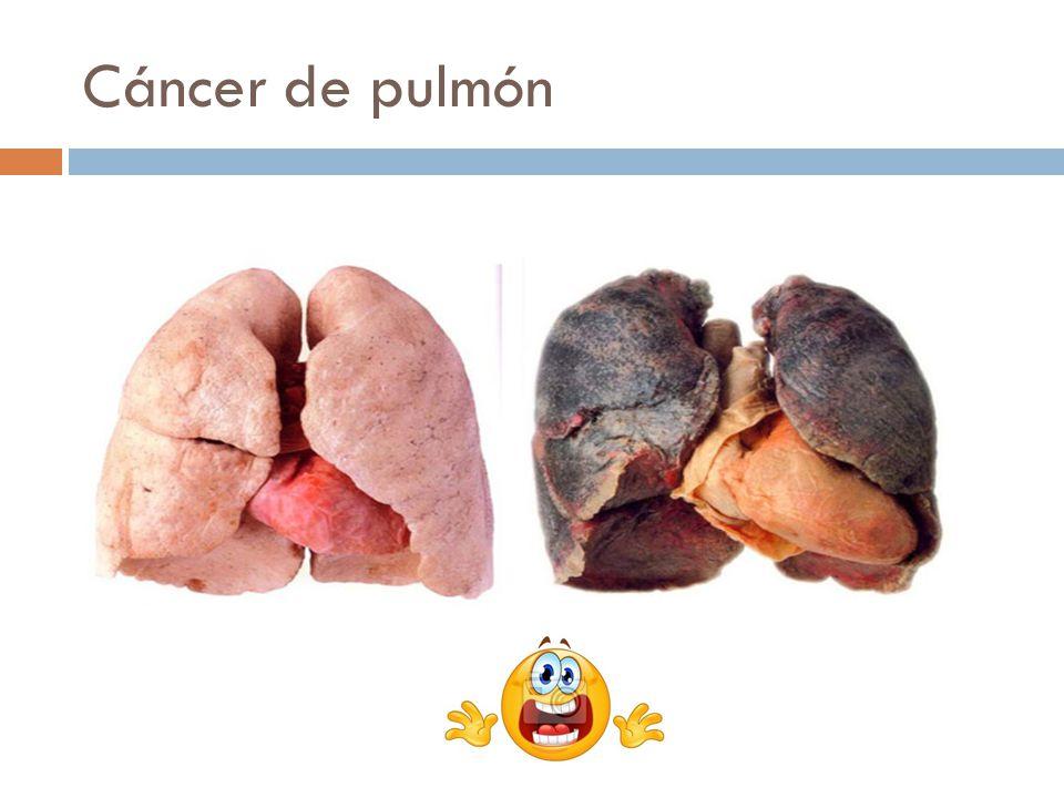 Higiene de la respiración Hemos oído y leído tantas frases como: el tabaco mata o fumar perjudica gravemente su salud Es cierto que fumar perjudica la salud.