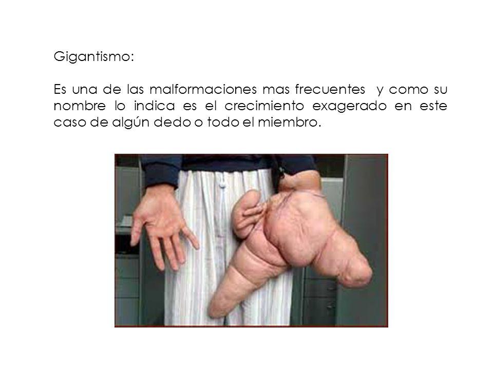 Gigantismo: Es una de las malformaciones mas frecuentes y como su nombre lo indica es el crecimiento exagerado en este caso de algún dedo o todo el mi