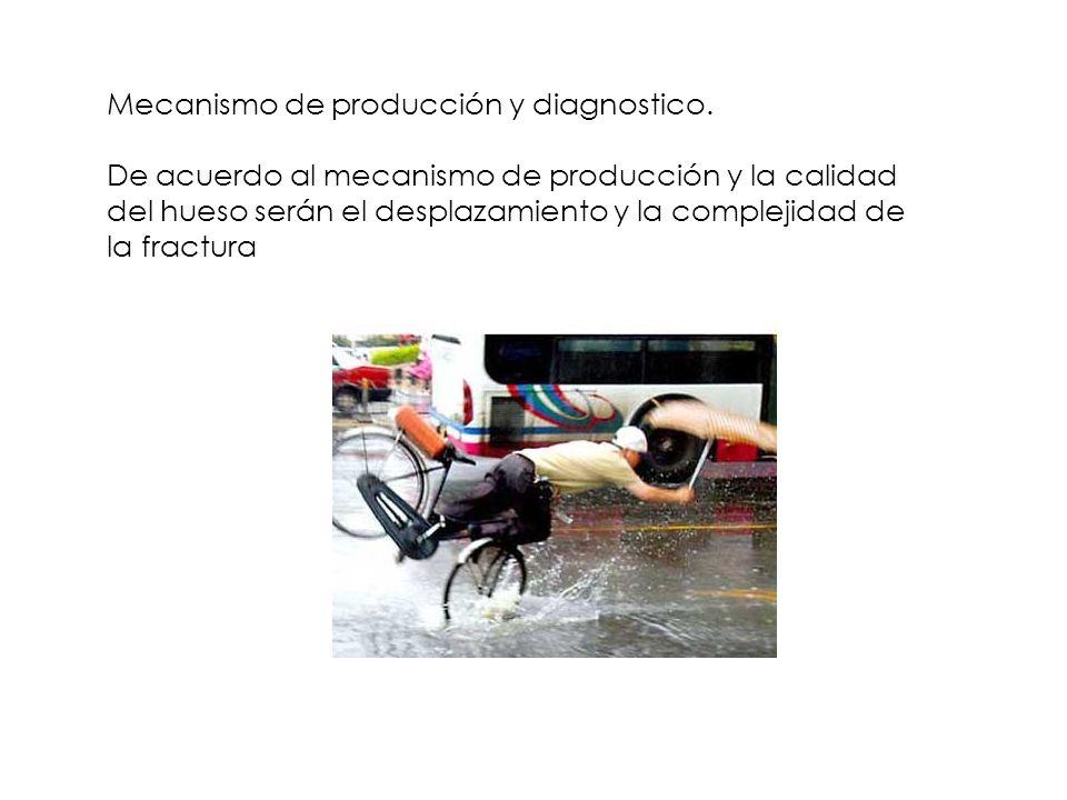Mecanismo de producción y diagnostico. De acuerdo al mecanismo de producción y la calidad del hueso serán el desplazamiento y la complejidad de la fra
