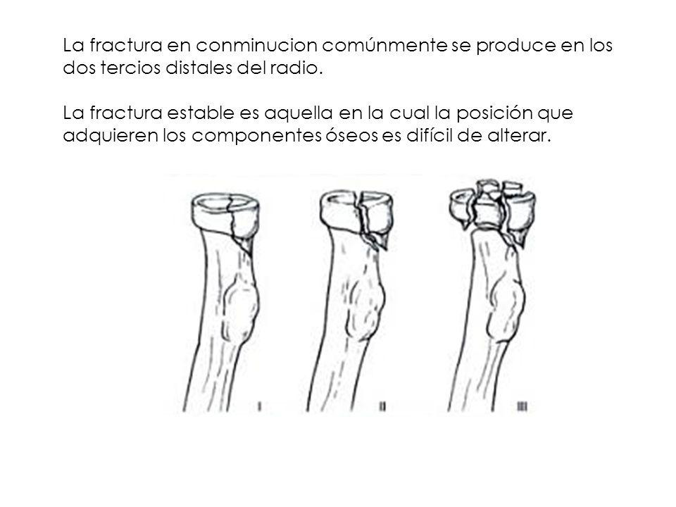 La fractura en conminucion comúnmente se produce en los dos tercios distales del radio. La fractura estable es aquella en la cual la posición que adqu