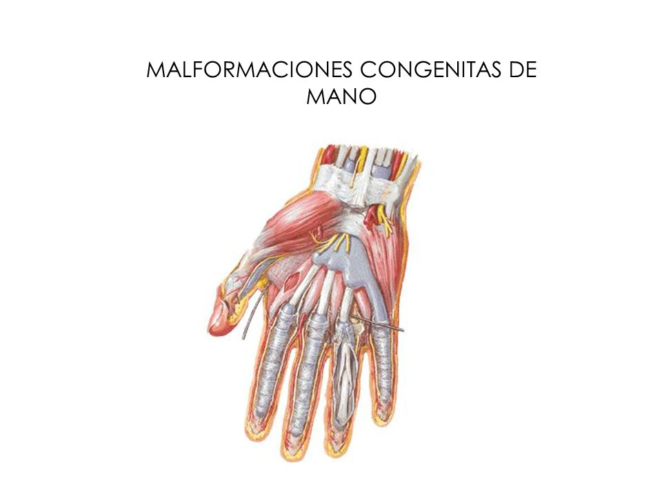 Gigantismo: Es una de las malformaciones mas frecuentes y como su nombre lo indica es el crecimiento exagerado en este caso de algún dedo o todo el miembro.