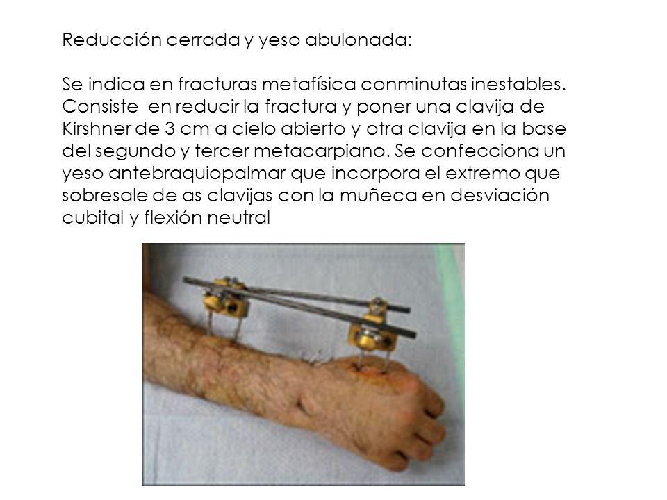 Reducción cerrada y yeso abulonada: Se indica en fracturas metafísica conminutas inestables. Consiste en reducir la fractura y poner una clavija de Ki